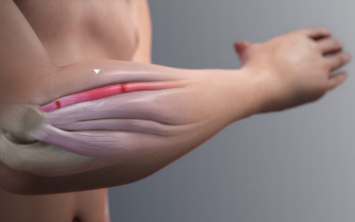 Επικονδυλίτιδες του αγκώνα