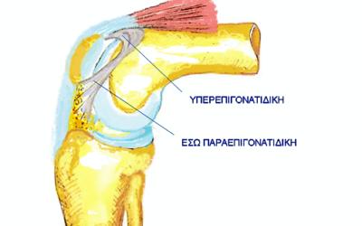 Σύνδρομο Υυμενικής Πτυχής του γόνατος